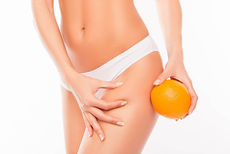 Anti Cellulite et Amincissement, Activ'Ice