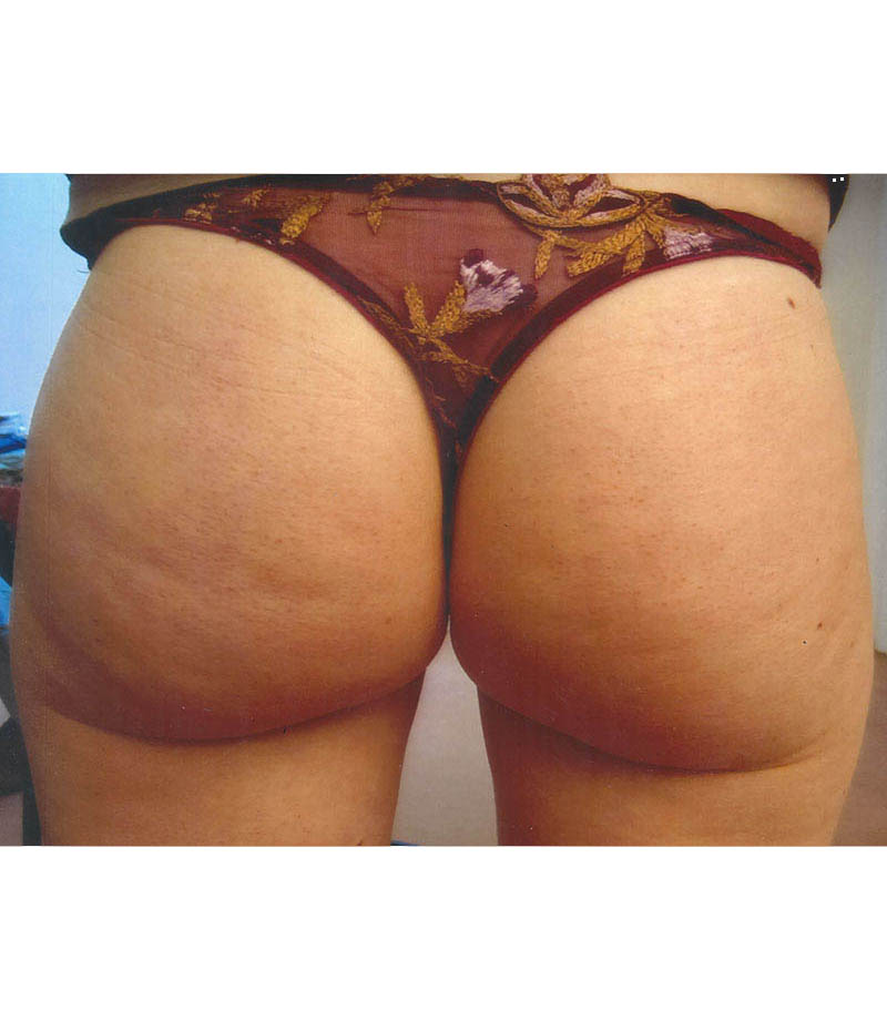 Anti Cellulite et Amincissement, Accent You